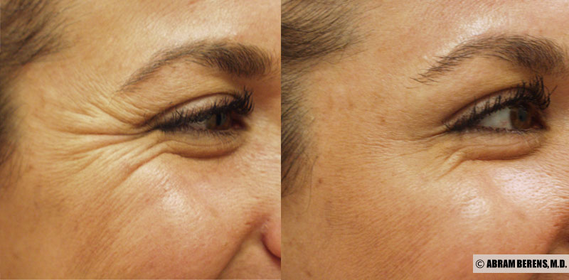 crows feet botox treatment
