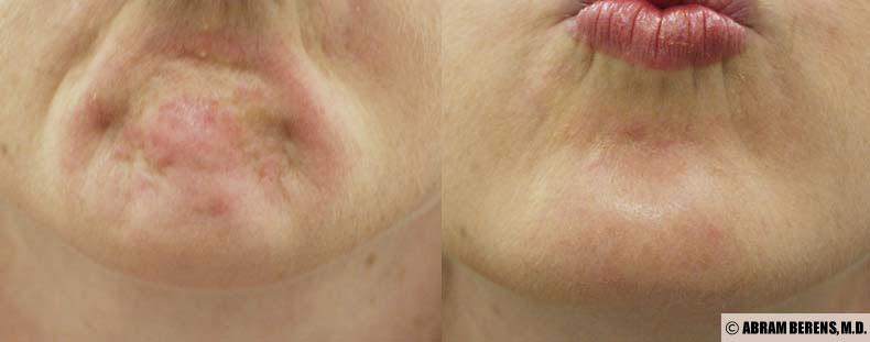 chin wrinkles