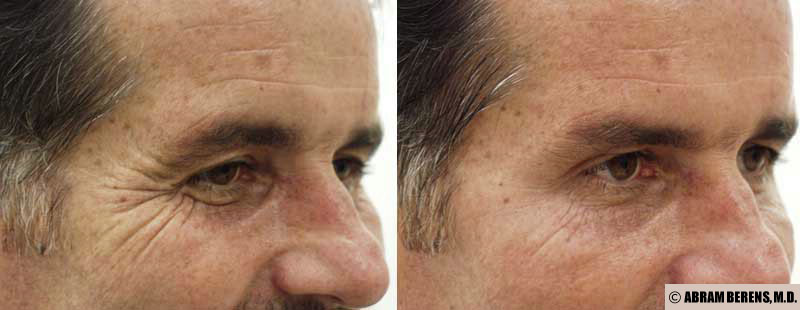 crows feet botox